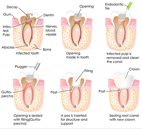 Root Canal in Stevenson